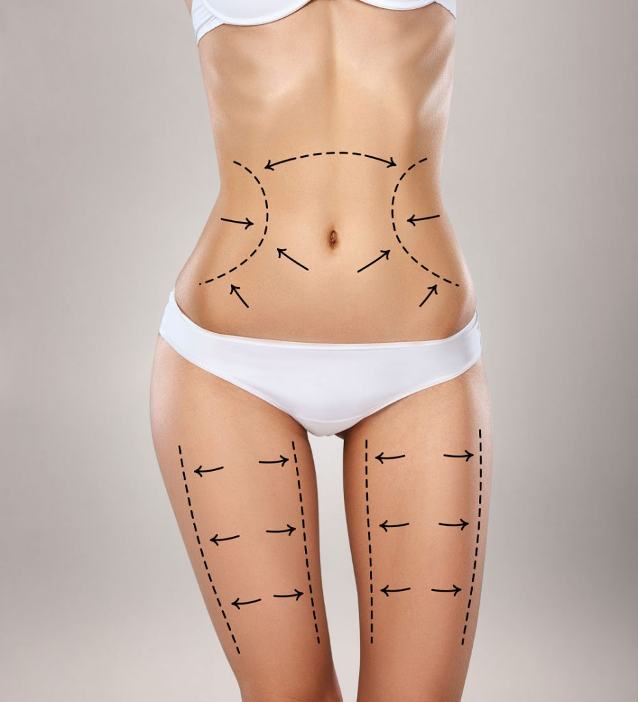 Before After Liposuction Cityslim And Laser Clinic