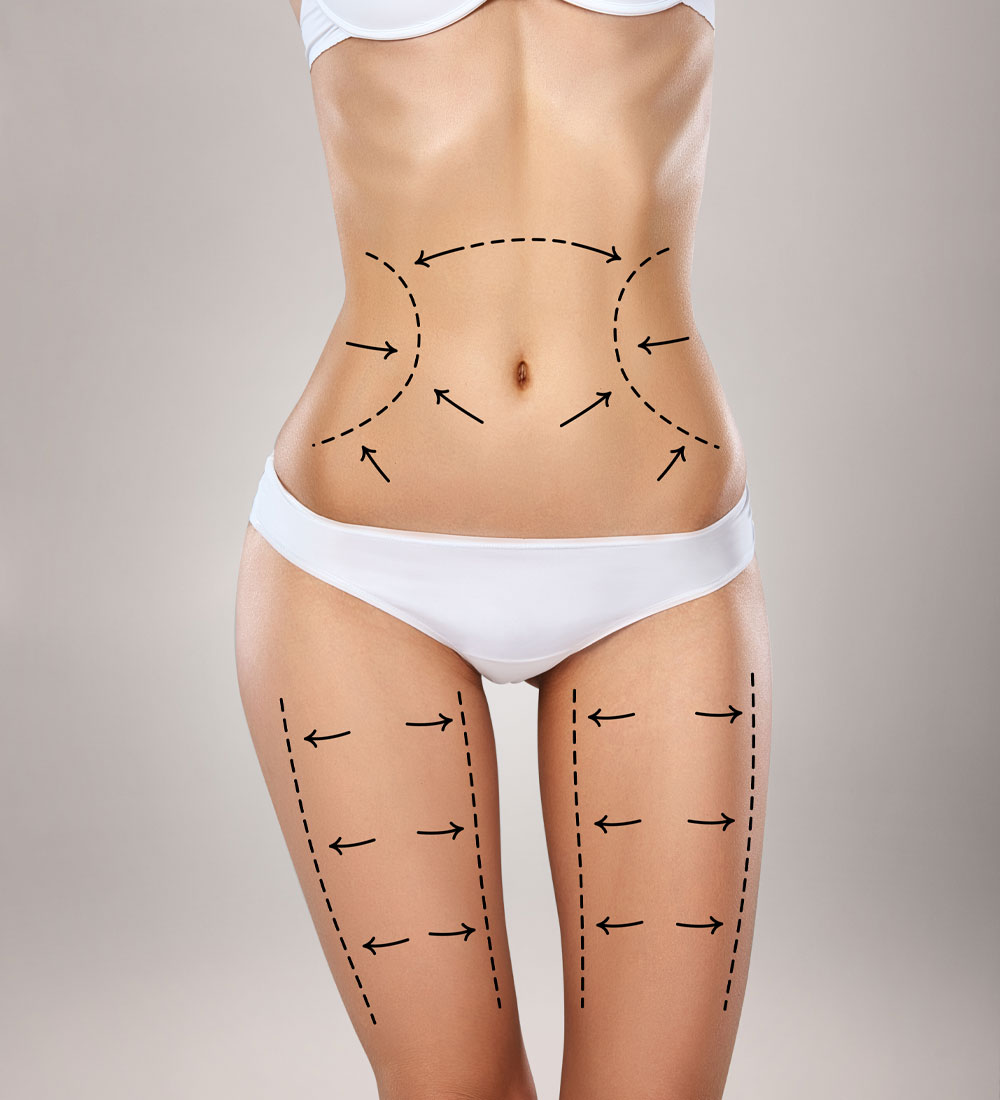 Before & After Liposuction – CitySlim and Laser Clinic